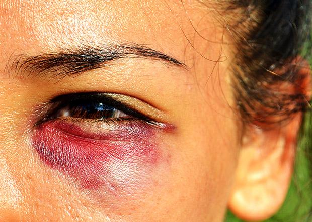 Claudia Rocha, a junior kinesiology major and women's rugby rookie, received a black eye while playing in a torunament during preseason. Photo credit: Laura pierson / Contributor