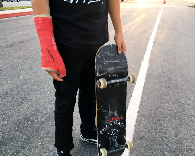 Rick Molina boke his arm on campus last week, but continues to skate.