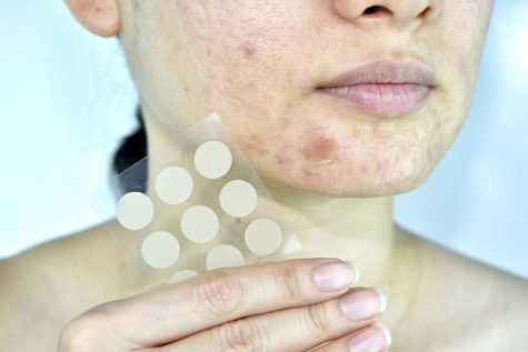 Facial skin problem with acne patch